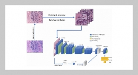 Classification of Histopathological Images for Early Detection of Breast Cancer Using Deep Learning